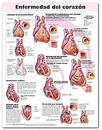 Enfermedad del Corazon Anatomical Chart / Heart Disease Anatomical Chart
