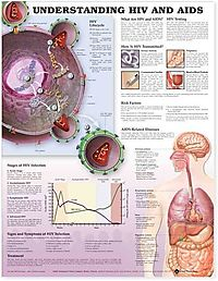 Entendiendo Que Son el VIH y el SIDA / Understanding HIV and AIDS Anatomical Chart