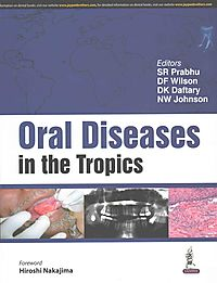 Oral Diseases in the Tropics